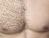Inåtväxande hårstrån