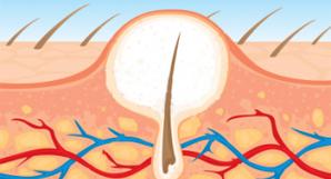 hårsäcksinflammation